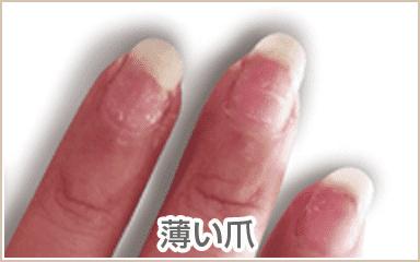 毟り爪、ネイルで傷んだ爪