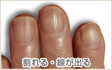 乾燥爪、縦裂爪、爪甲横溝