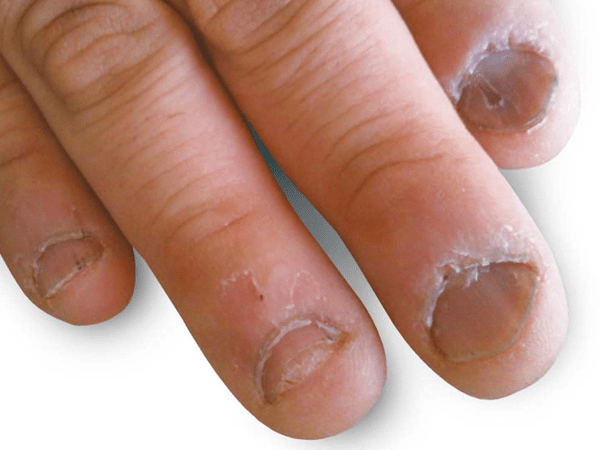 噛み爪矯正前