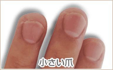 深爪・噛み爪