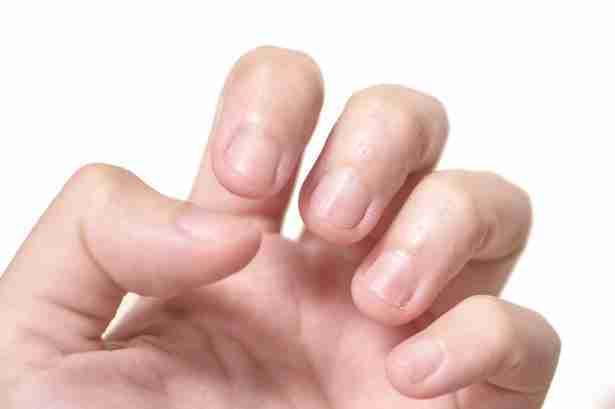 変換 ~ 深爪矯正に必要なのはプロセス決定